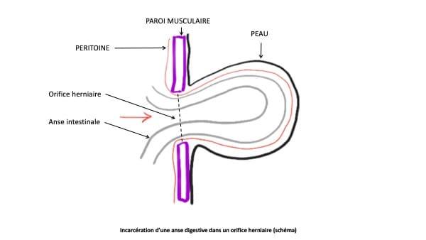 hernie de la paroi abdominale chirurgie viscerale docteur le toux chirurgien visceral paris 16 chirurgien digestif paris 16