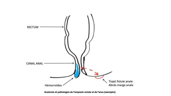 proctologie paris 16 chirurgie viscerale docteur le toux chirurgien visceral paris 16 chirurgien digestif paris 16